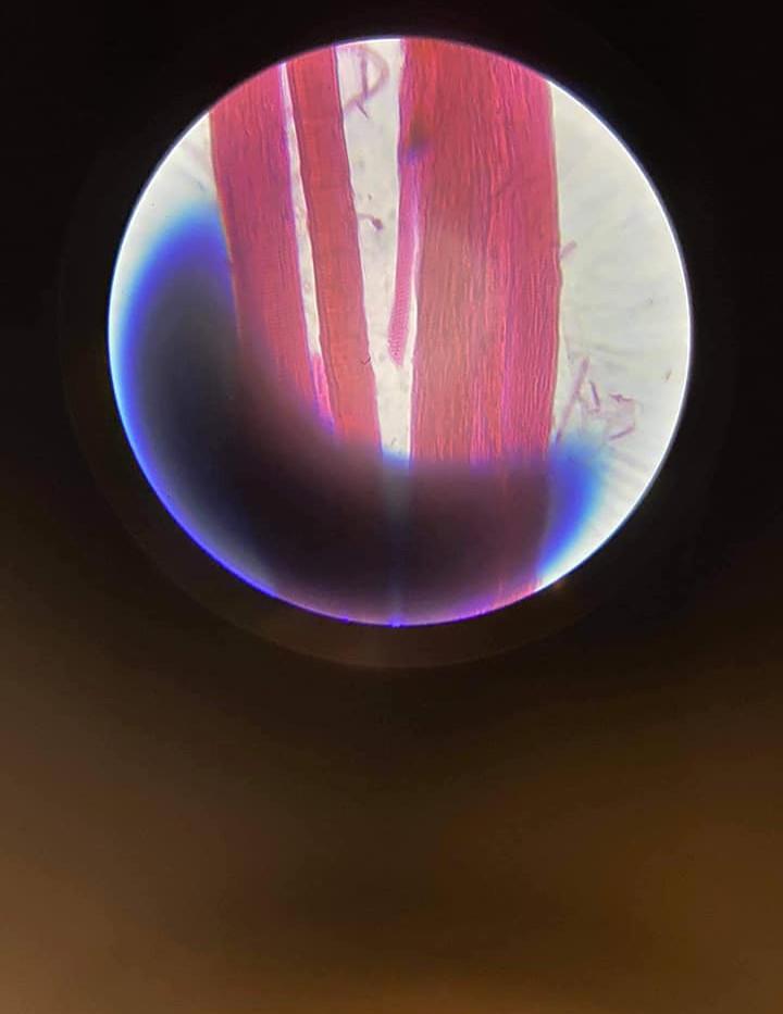 tkanka mięśniowa