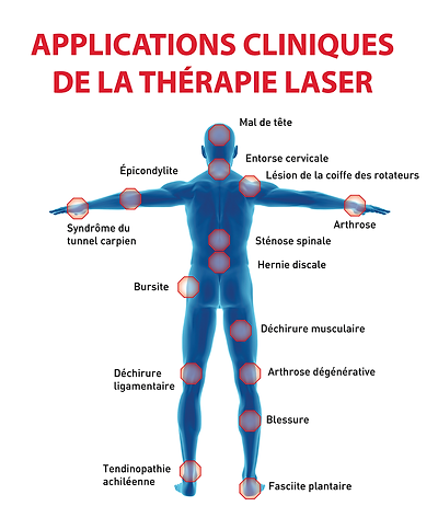 applications therapie laser