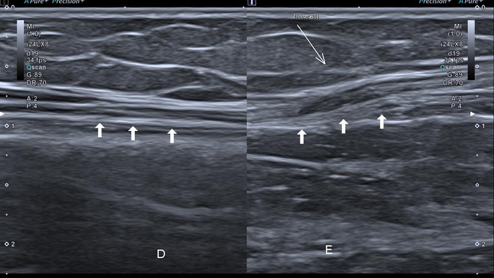 nervo radial ramo superficial sensitivo wartenberg ultrassom