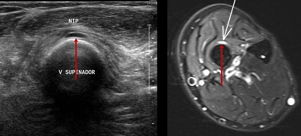 neuropatia interosseo posterior ultrassom ressonancia supinador