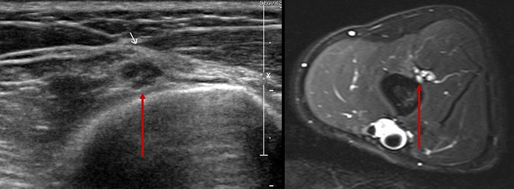 neuropatia radial nervo sulco espiral ultrassom ressonancia