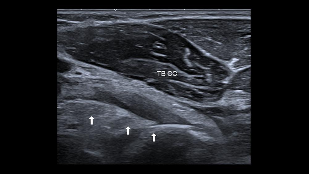 cabeça curta do tendão do bíceps braquial