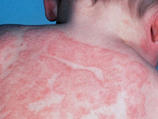 Eczema - Not just skin deep.