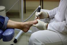 медицинский педикюр стопы, вросший ноготь