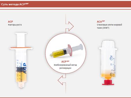Методика лечения артроза плазмой крови и жировой тканью
