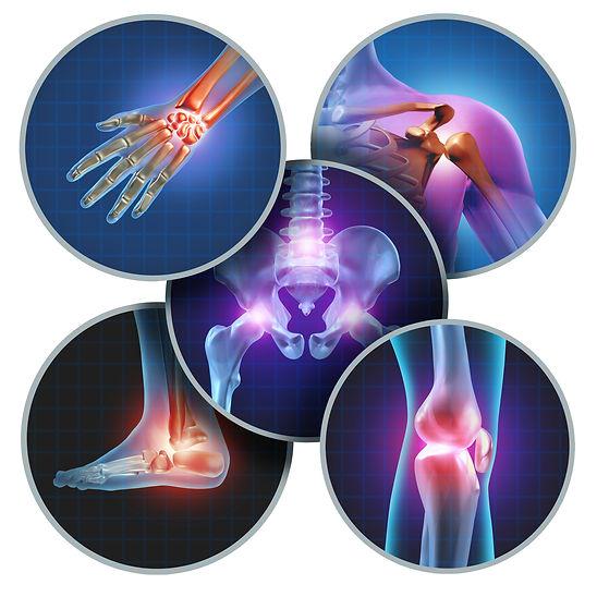 pain areas.jpg