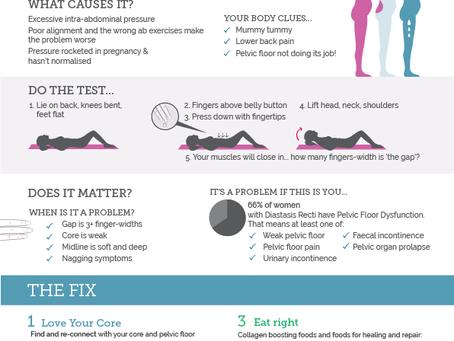 What Is Diastasis Recti & Do I Have One?