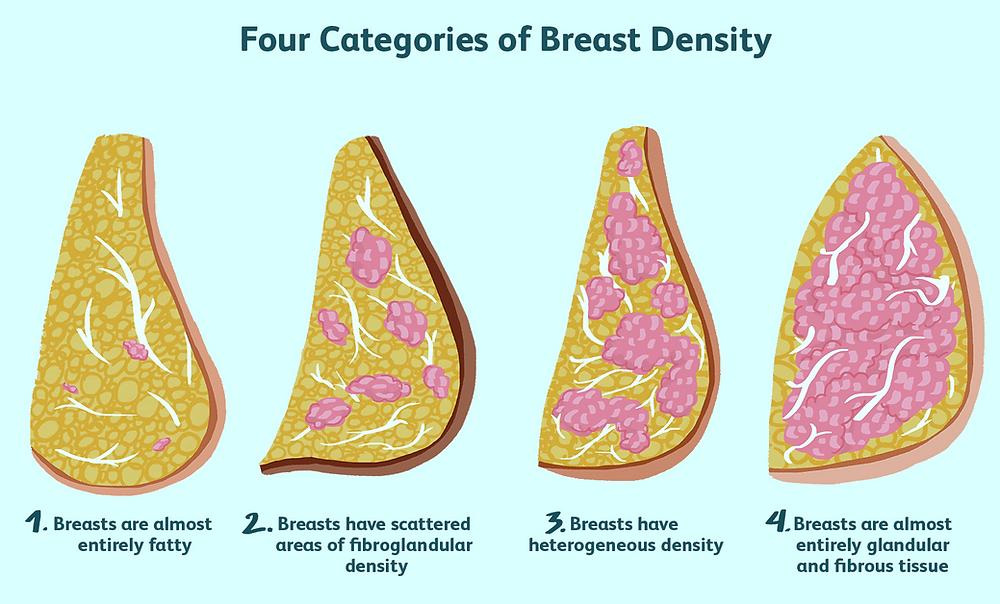 Four categories of dense breast