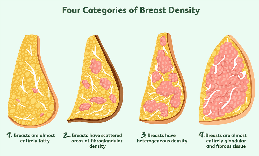 The Four Categories of Breast Density