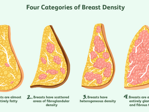 Understanding Breast Density: Risk & New Screening Options Made Simple!
