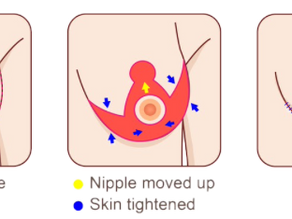 What Is Breast Reduction Surgery?