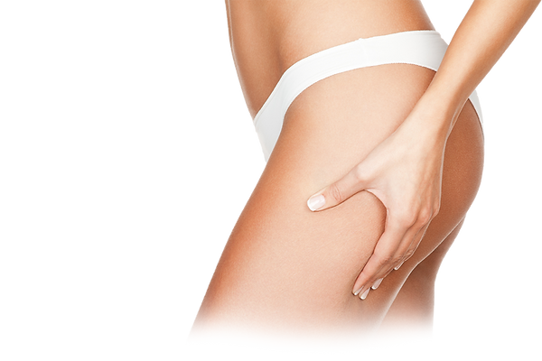 Cellulite-The-Laser-and-Skin-Clinic.png
