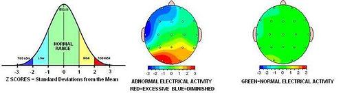 neuroregualtion science.jpg