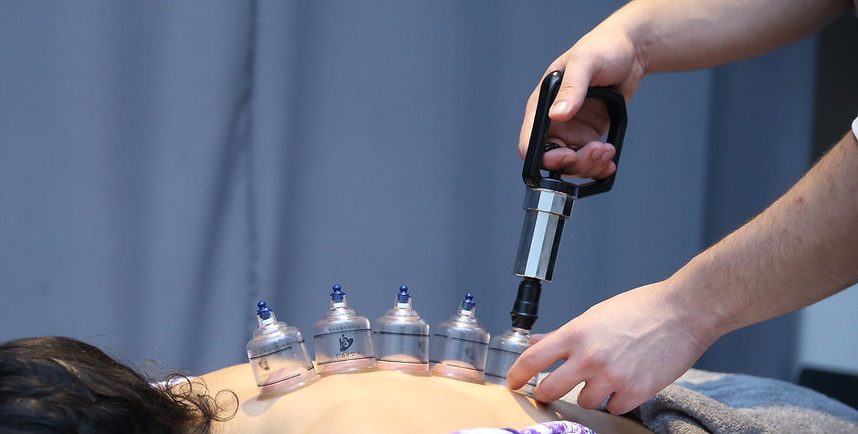 Cupping therapy for musculoskeletal physiotherapy | Kinesis Physiotherapy & Wellness Clinic