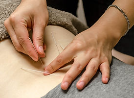 Acupuncture Dry Needling