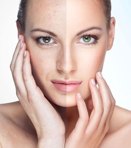 rejuvenate-austin-limelight-ipl-photofac