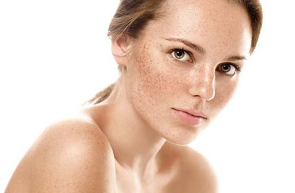skin pigmentation.jpg