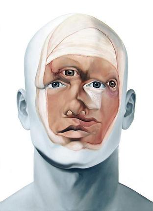 christophe avella bagur - Face FS90 My New Surgery