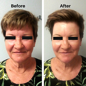 Natural Face Lift Skin Treatment.png