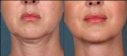 OxyGeneo results - Your Fabulous Face Aesthetics