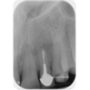 the-root-canal-specialist-portfolio-19.