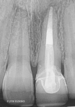 the-root-canal-specialist-portfolio-14-