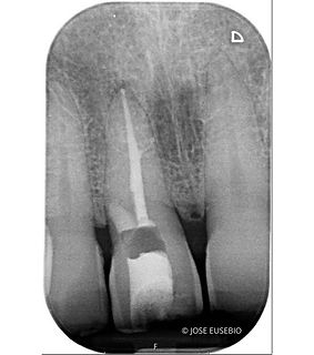 the root canal specialist portfolio 07.