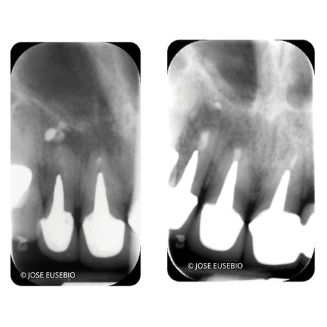the-root-canal-specialist-portfolio-15.
