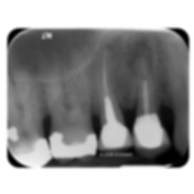 the-root-canal-specialist-portfolio-18.