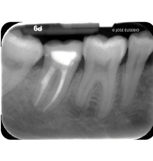 the-root-canal-specialist-portfolio-12.