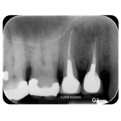 the-root-canal-specialist-portfolio-17.