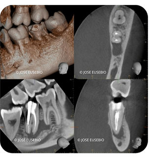 the root canal specialist portfolio 11