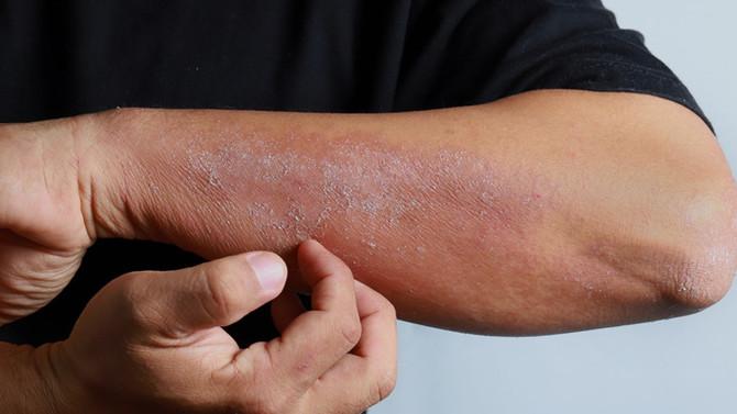 Entenda como o Intestino Impacta sua Dermatite