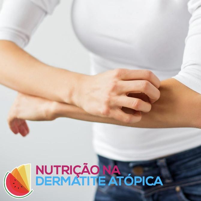 Dermatite Atópica e a Alimentação