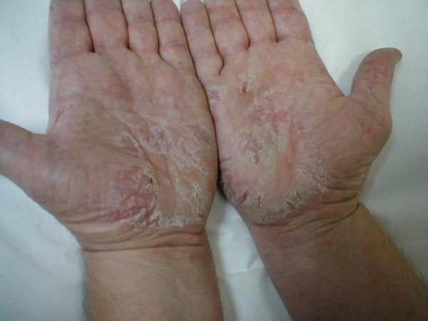 Dermatite Atópica. Como a Alimentação Ajuda?