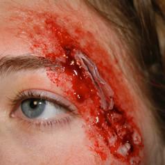 Glass Wound
