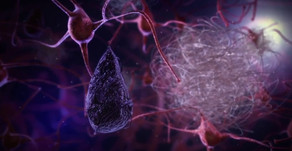 Exploring Alzheimer's Disease: The Most Common Dementia