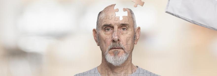 Demencia Senil y Alzheimer