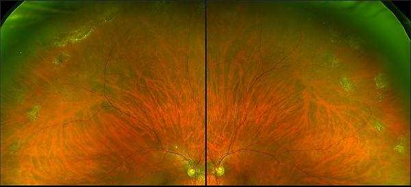 Retinal Holes.jpg