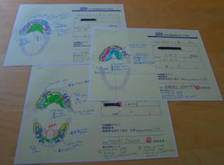 補綴構造設計士の仕事