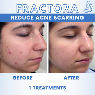 Acne Scars 4.png