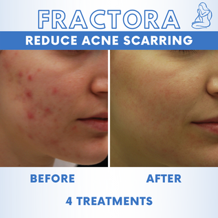 Acne Scars 5.png