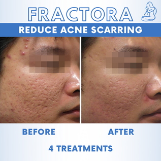 Acne Scars 2.png