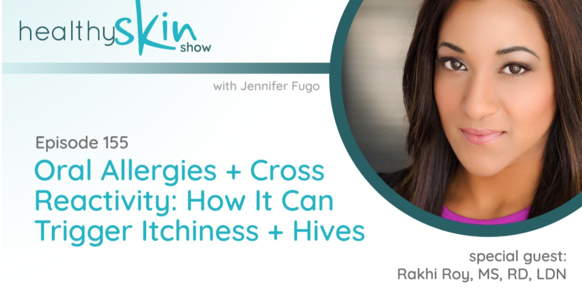 "Podcast guest on The Healthy Skin Show Episode 155 ""Oral Allergies + Cross Reactivity"""