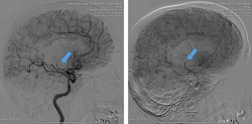 Angio showing Left MCA Occlusion (Latera