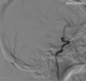 Angio showing left MCA M1 Occlusion2.jpg