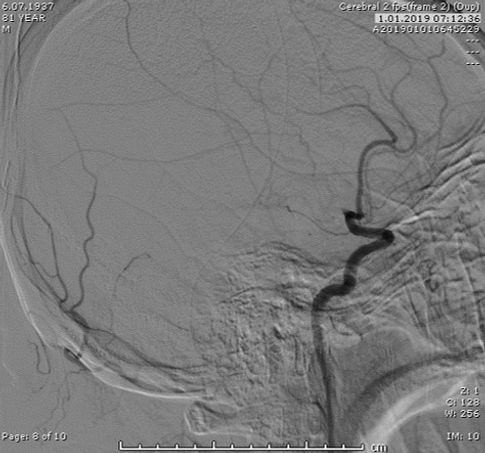 Angio showing left MCA M1 Occlusion2.jpg