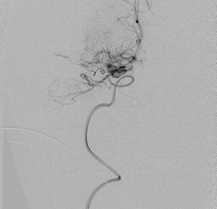 Angio images showing NeVa development in