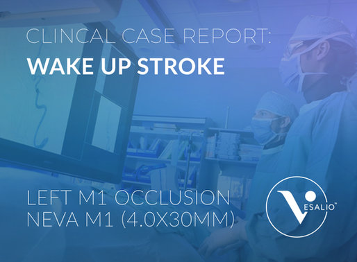 Wake Up Stroke - Case Report