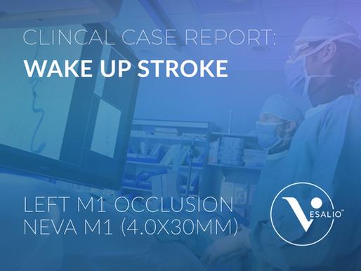 Wake Up Stroke - Case Report